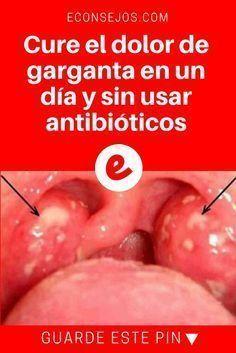que antibiotico tomar cuando hay placas en la garganta