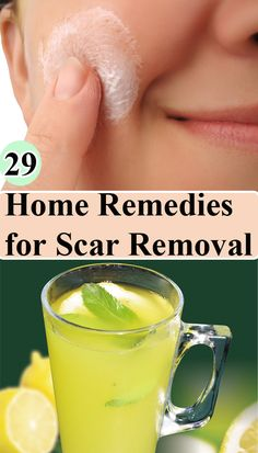 Creams to Remove Face Stains - Creams to Remove Face Stains - 29 Home Remedies for Scar Removal - Homemade creams to remove face stains - Homemade creams to remove face stains Natural Wart Remedies, Scar Remedies, Home Remedies For Acne, Scar Cream, Scar Removal Cream, How To Apply Mascara, Tips Belleza, Homemade Beauty, Health And Beauty