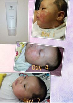 Before and after using enhancer # Distributor ID US 00678373