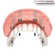 """4 implantes para colocar todos os dentes? É este o conceito do """"All-on-4"""". Esta técnica permite a desdentados totais fazer uma reabilitação oral completa através da implantologia sem recorrer a enxertos ósseos. Além do mais, permite a recuperação mesmo nos casos em que não há muito osso. Quer saber mais sobre o """"All-on-4""""? Marque já a sua consulta de avaliação sem compromissos ou peça mais informações.  ---------------------------------------"""