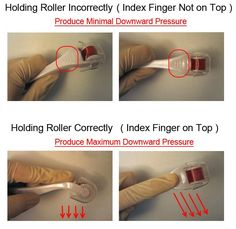 Warning: Derma roller can harm your skin! Learn how to use a dermaroller with Guaranteed results & remove wrinkles, acne scars and stretch marks Scar Removal Cream, Acne Scar Removal, Skin Care Remedies, Acne Remedies, Dermaroller, Skin Needling, Acne Solutions, Remove Acne, Skin Treatments