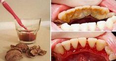 Molte persone soffrono l'accumulo di placca sui denti, che è in realtà un gruppo di minerali e batteri da residui di cibo che il lavaggio non rimuove. Le macchie gialle o denti marroni e infiammazione delle gengive e può causare dolore, gonfiore e sanguinamento. Questo problema può essere evitato