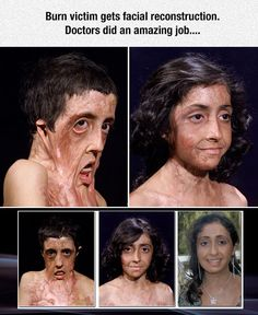 Zubaida Hasan's Amazing Face Reconstruction