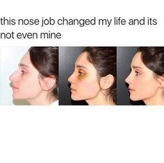 Her nose and under bag job