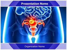 Make A Great Looking Ppt Presentation Quickly And Affordably With Our Professional Medical Uterus Cancer Point Template This