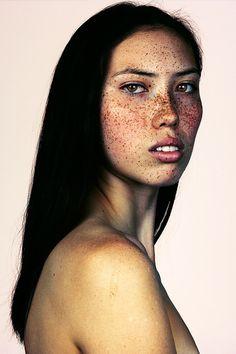 Diese Porträts zeigen, wie wundervoll es ist Sommersprossen zu haben