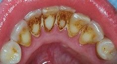 How To Remove Plaque Without Going To The Dentist