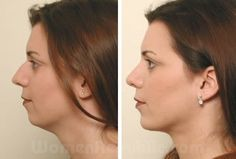 If you feel that you have a weak chin that is throwing off how good you could look, chin implant surgery may be for you.   To know more about chin implants please contact :  http://www.drfpalmer.com/ChinImplants.html