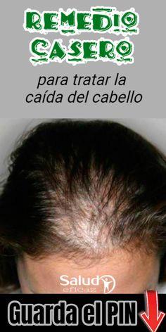 17 Ideas De Caida Cabello Remedios Caida Cabello Remedios Caída Del Cabello Remedios Para La Caída Del Cabello
