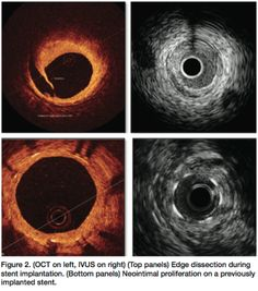 Southard JA. The use of OCT compared with IVUS. Cath Lab Digest March 2012;20(3):40, 42.