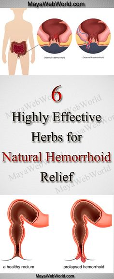 Herbal Remedies for Hemorrhoids – 6 Highly Effective Herbs for Natural Hemorrhoid Relief – MayaWebWorld