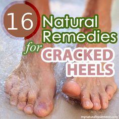 Natural Remedies for Cracked Heels #crackedheels #crackedfeet