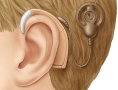 "Ok. I have to read this.   ""Cochlear implant--pretty scary."""