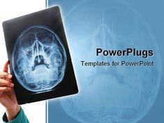 http://ppt-lt.crystalgraphics.com/lt_xray_am_28_powerpoint_templates_title_slide.jpg