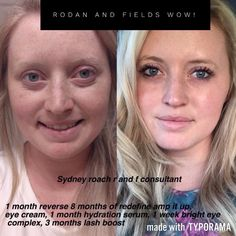 Fix uneven skin tone. Brighten complexion. Remove dark spots and patches. Reverse regimen from Rodan + Fields is clinically proven to deliver results. Not happy with your current skincare routine? Then try something new! Save 10% as a Preferred Customer. |Reverse before and after | Redefine before and After | Rodan and Fields results | Glowing skin| Beautiful skin |