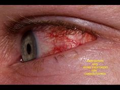 Eye Infection (Conjunctivitis) Home Treatment & Prevention - Pink Eye - YouTube