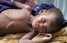 Les solutions contre la faim dans le monde