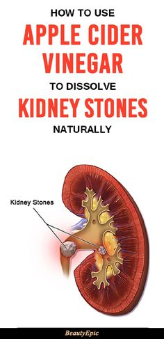 How To Use Apple Cider Vinegar To Dissolve Kidney Stones Naturally