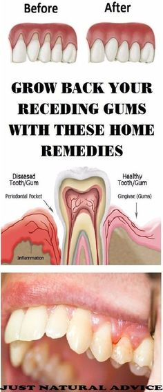 Grow back your receding gums with these home remedies.