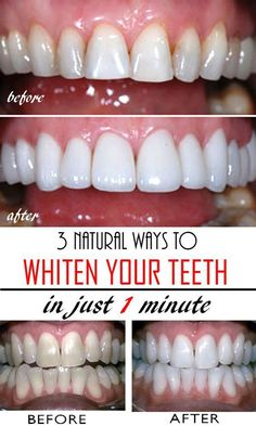 3 natural & homemade solutions to get whiter teeth in just a few minutes! Read t… 3 natural & homemade solutions to get whiter teeth in just a few minutes! Read this tutorial and get rid of yellow teeth forever! Teeth Whitening Remedies, Natural Teeth Whitening, Whitening Kit, Charcoal Teeth Whitening, Fast Teeth Whitening, Homemade Teeth Whitening, My Beauty, Health And Beauty, Beauty Care