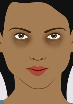 It may not just be genetics: is this why you have dark circles?