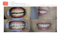 As your premier cosmetic dentist in South Africa - we are pioneers in the fields of aesthetically-driven rehabilitative dentistry and facial aesthetics Cape Town, Dentistry, Halloween Face Makeup, Wedding Ideas, Cosmetics, Smile, Smiling Faces, Wedding Ceremony Ideas, Makeup Geek