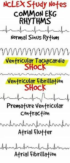 "An electrocardiogram (ECG or EKG) is a noninvasive test that monitors the electrical activity of the heart. Learn more with our ""ECG Interpretation"" Picmonic! Cardiac Nursing, Nursing Mnemonics, Nursing Career, Nursing Tips, Nursing Programs, Rn Programs, Med Surg Nursing, Nursing Board, Nursing Graduation"