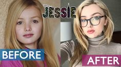 Jessie Before and After 2016