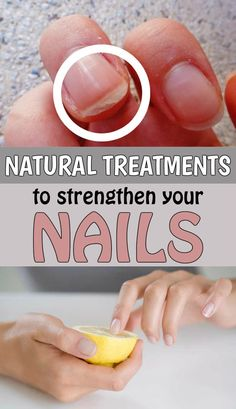 """Natural treatments to strengthen your nails - <a href=""""http://TheBeautyMania.net"""" rel=""""nofollow"""" target=""""_blank"""">TheBeautyMania.net</a>"""