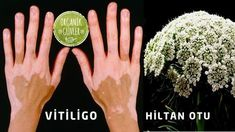 Treatment of Vitiligo with Spotted Hiltan Herb - .- Benekli Hiltan Otu ile Vitiligo Tedavisi – Treatment of Vitiligo with Spotted Hiltan Grass – to the the - Natural Cough Remedies, Herbal Remedies, Fitness Nutrition, Diet And Nutrition, What Is Vitiligo, Vitiligo Treatment, Relieve Gas, Anti Aging, Regular Exercise
