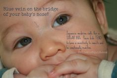 In Japanese Medicine a blue vein on the bridge of a baby's nose is called, Kanmushi or Sugar Bug. These kids tend to be sensitive to sugar and may be emotionally reactive.