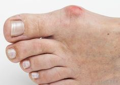 What Is A Bunion And How To Get Rid Of It? Learn More Here