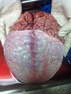 Brain. neurosurgery.