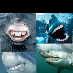 As many of you know this week is Shark Week. Here's a little dental humor Shark Week style for you! 9gag Funny, Funny Cute, Funny Memes, Teeth Funny, Funny Stuff, Memes Humor, Super Funny, Humour Quotes, Hilarious Stuff