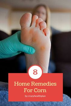 how to get rid of corns :- If you are active, it is normal that you may develop corns on your feet and hands at some point of time. Foot Remedies, Herbal Remedies, Health Remedies, Best Oils, Best Essential Oils, Get Rid Of Corns, Corn Removal, Best Callus Remover, Medical Information