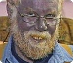 The Blue People of Troublesome Creek Kentucky a result of hereditary methemoglobinemia Martin Fugate carried the recessive gene and the odds that he could have married a. Ionic Silver, Appalachian People, Natural Antibiotics, Medical Problems, Medical Conditions, Public Relations, Kentucky, Weird, Historia
