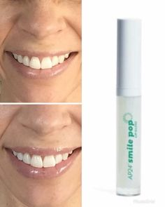 Smile Pop Lip Gloss - Illuminating pearls that make teeth appear whiter Smile Whitening, Aloe On Face, Ap 24, Perfect Lips, Face Facial, Moisturizer With Spf, Lip Plumper, Beauty Hacks Video, Beauty Secrets