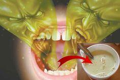 Majoritatea oamenilor întâmpină următoarea problemă: respirația urât mirositoare datorată sau nu igienei orale precare.  Pe piață, există multe tratamente costisitoare și medicamente pentru neutralizarea bacteriilor orale, însă de cele mai multe ori, eficacitatea lor lasă de dorit.  Azi ne-am gândit cum să te scutim de cheltuirea banilor pe tratamente ineficiente, folosind un remediu …