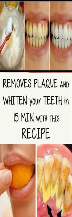 Keeping your teeth clean and healthy is an essential part of proper oral hygiene. Although many people don't think so, the teeth are essenti. What Causes Tooth Decay, Remedies For Tooth Ache, Receding Gums, Ketogenic Diet For Beginners, Oral Hygiene, Teeth Cleaning, Dental Care, Healthy Tips, Recipe