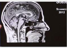 Dr. Erin Bigler explains how Frontal Lobe Damage Impacts Behavior #braininjury  http://braininjuryhelp.com/video-tutorial/frontal-lobe-damage-impacts-behavior-403/