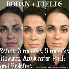 Wow!!  All I can say is life changing skincare!  #rodanandfields #lifechangingskincare