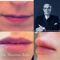 Lip Filler : Natural and Beautiful Result #drmassimorota