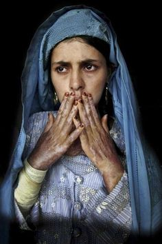 Masooma has severe burns on 70 per cent of her body from self-immolation in this shot taken in Herat in 2004. Forced marriages, domestic violence, poverty and lack of access to education are the main reasons for women attempting suicide.