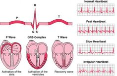 How to read an ECG