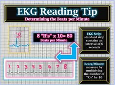 EKG Reading Tips: Beats per minute via box counting on the strip @iStudentNurse #NurseHacks #EKG #ECG