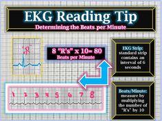EKG Reading Tips: Beats per minute via box counting on the strip @iStudentNurse #NurseHacks #EKG #ECG