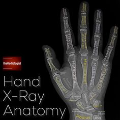 Read on to find out more about my review areas on a hand X-Ray...⁣ ⁣ ⁣ ⁣ 👨🏽‍💻Hand x-rays are performed in cases of patients with suspected… Radiology Student, Radiology Imaging, Radiologic Technology, Medical Anatomy, Human Anatomy And Physiology, Medical Coding, Medical Information, Nursing Tips, How To Find Out