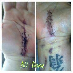 All done February 2014 Carpal Tunnel, Surgery, February, Ear