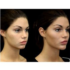 Laser hair elimination is epilation by laser or with making use of an unique light. Besides the body, specific types of laser hair removal may securely be used to reduce facial hair as well. Nose Fillers, Facial Fillers, Dermal Fillers, Botox Fillers, Cheek Injections, Cheek Implants, Facial Implant, Relleno Facial, Chin Filler