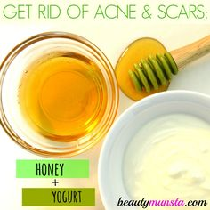 Here are top 5 easy DIY yogurt face mask recipes for acne! Rich in skin-friendly nutrients such as b-vitamins, calcium, lactic acid and zinc, yogurt is just an amazing beauty ingredient you must start using in your face masks.